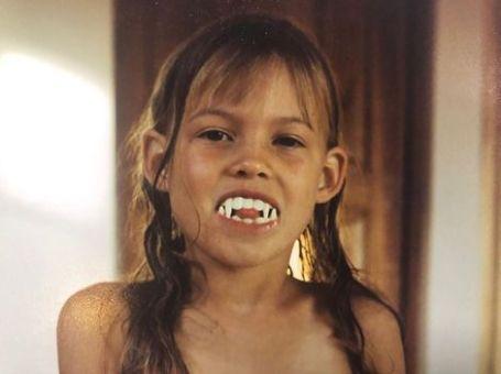 Behati Prinsloo childhood, age